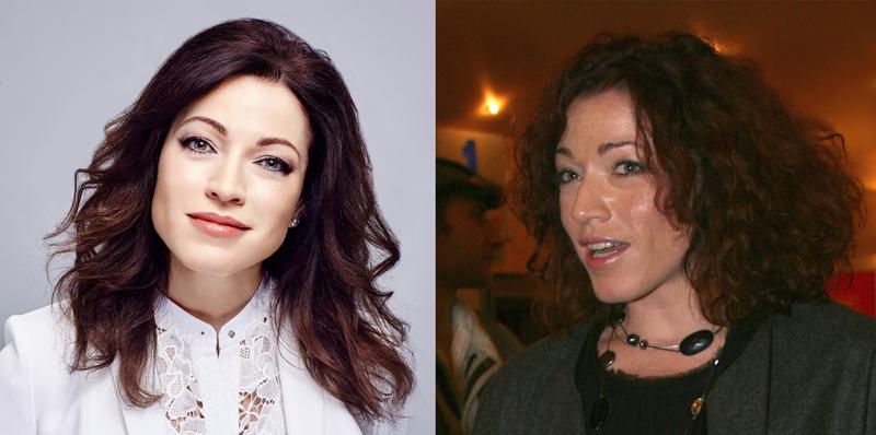 Фото Алены Хмельницкой до и после пластики