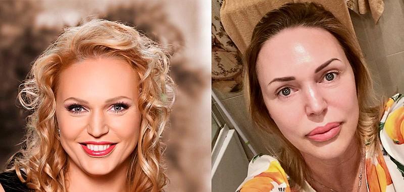Фото Аллы Довлатовой до и после пластики