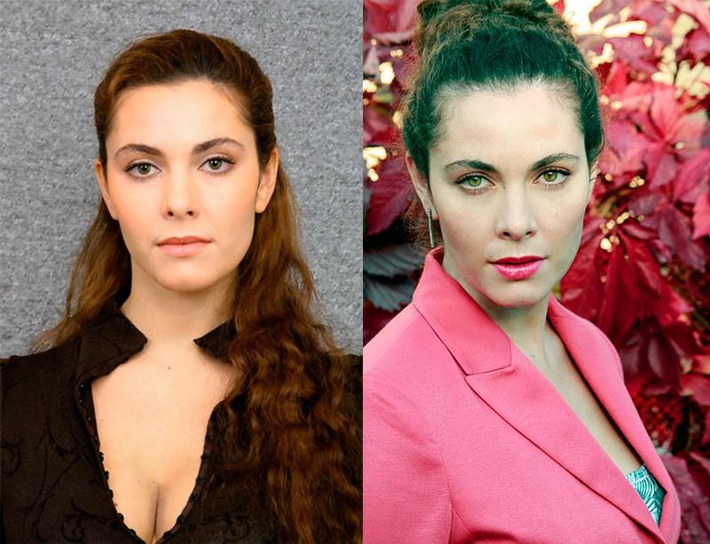 Фото Янины Соколовской до и после пластики