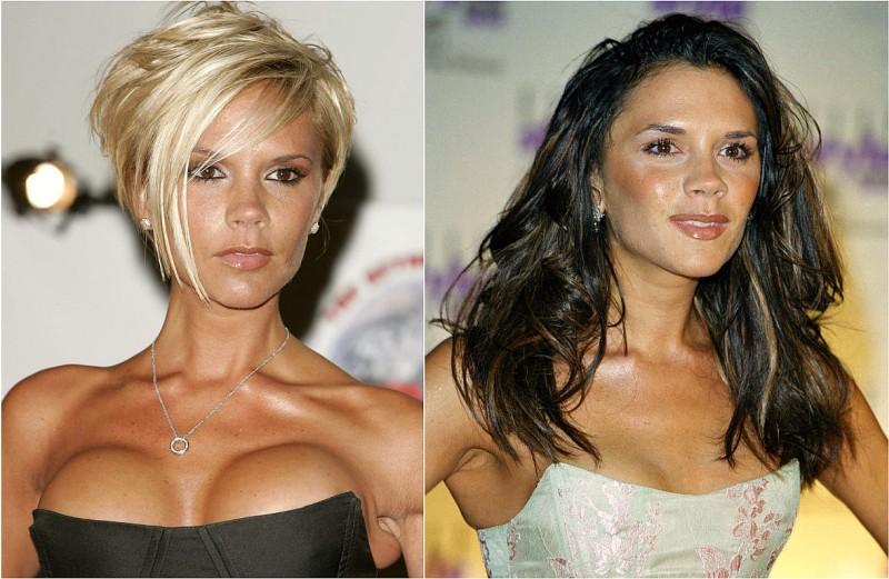 Виктория Бекхэм - фото до и после пластики